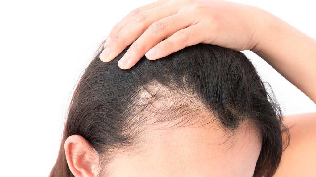 caduta dei capelli legata allo stress